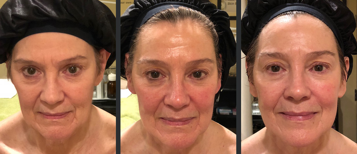 Do Gua Sha facials work?